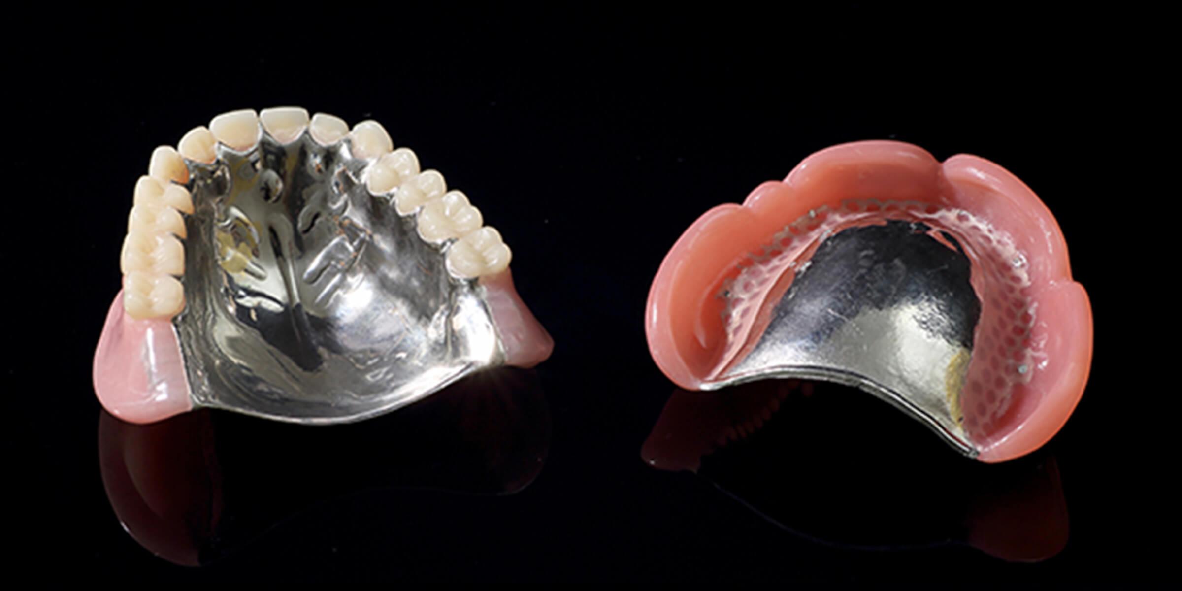 金属床義歯(保険適用外)
